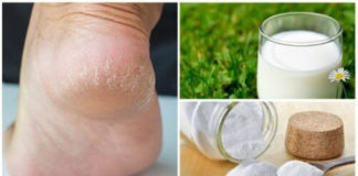 Φροντίδα ποδιών